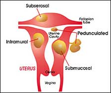 uterine fibroid tumors